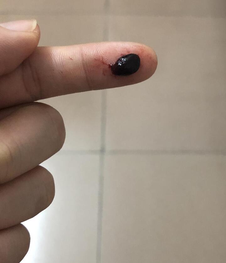出血 排卵 期